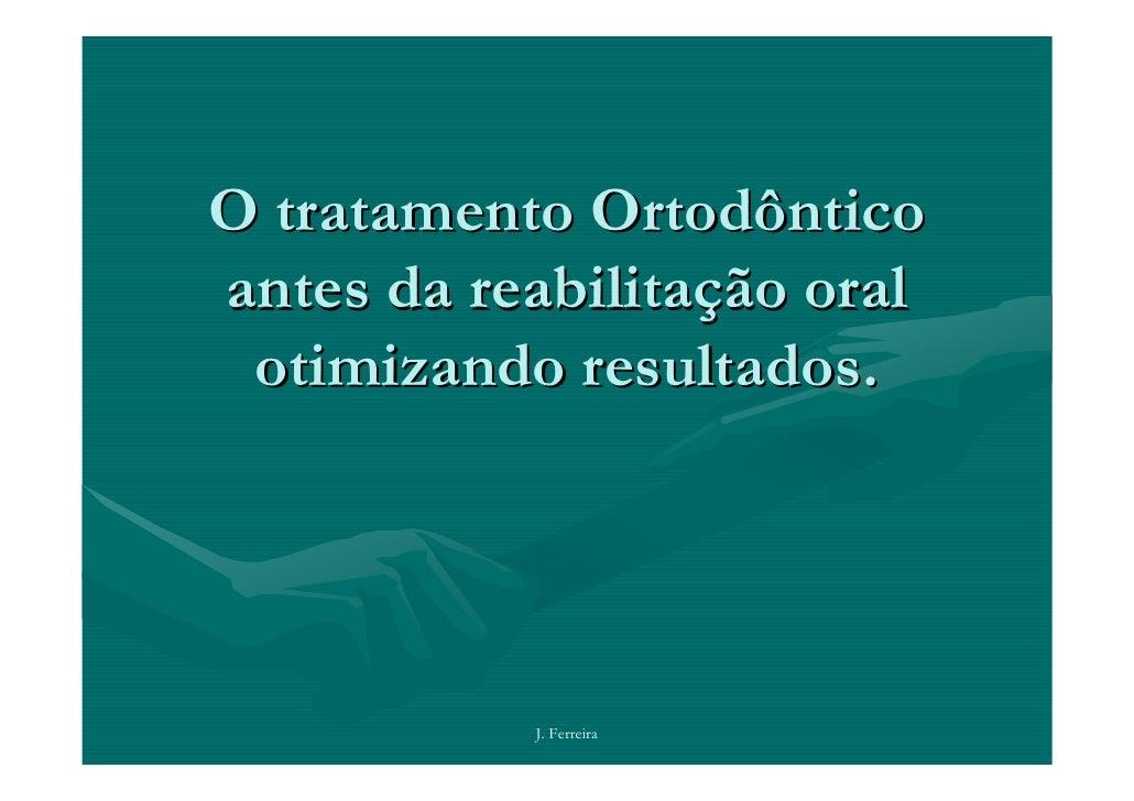 O tratamento Ortodônticoantes da reabilitação oral otimizando resultados.           J. Ferreira