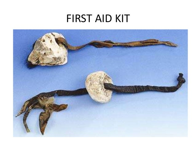 Otzi The Ice Man Artifacts