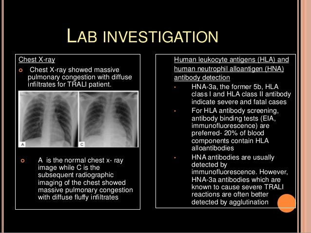LABORATORY INVESTIGATION OF TRANSFUSION REACTION CASES
