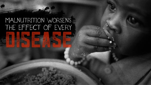 disease MALNUTRITION WORSENS THE EFFECT OF EVERY