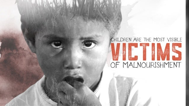 victims CHILDREN ARE THE MOST VISIBLE OF MALNOURISHMENT
