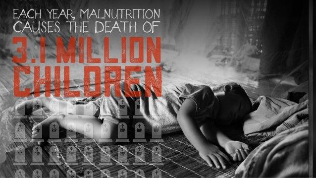 3.1 million CHILDREN EACH YEAR, MALNUTRITION CAUSES THE DEATH OF