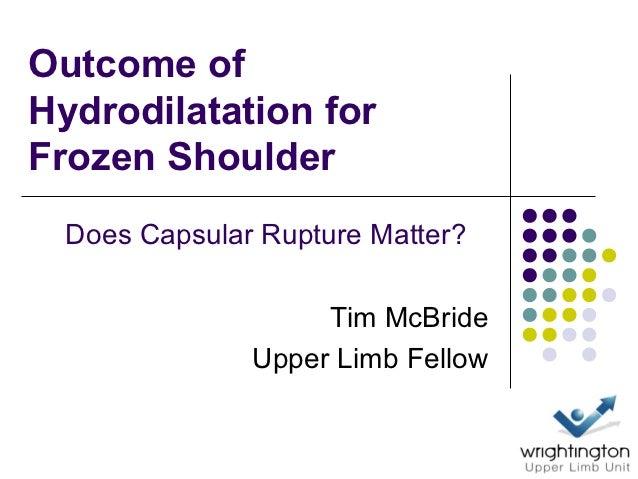 Outcome ofHydrodilatation forFrozen Shoulder  Does Capsular Rupture Matter?                    Tim McBride               U...