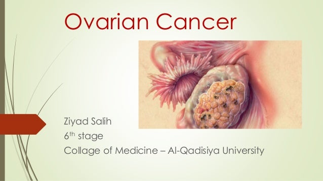 Ovarian Cancer  Ziyad Salih  6th stage  Collage of Medicine – Al-Qadisiya University