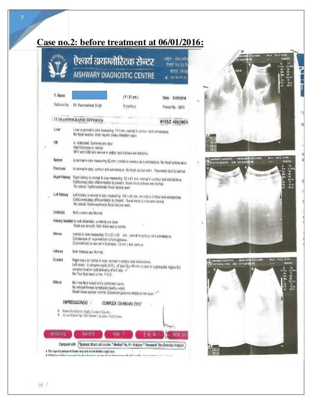 Ovarian cyst case study