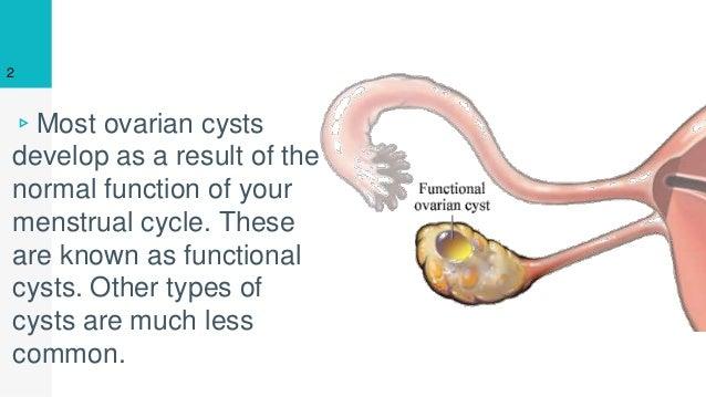 Ovarian Cyst Causes | Ovarian Cyst Treatment |Ovarian Cyst Pain
