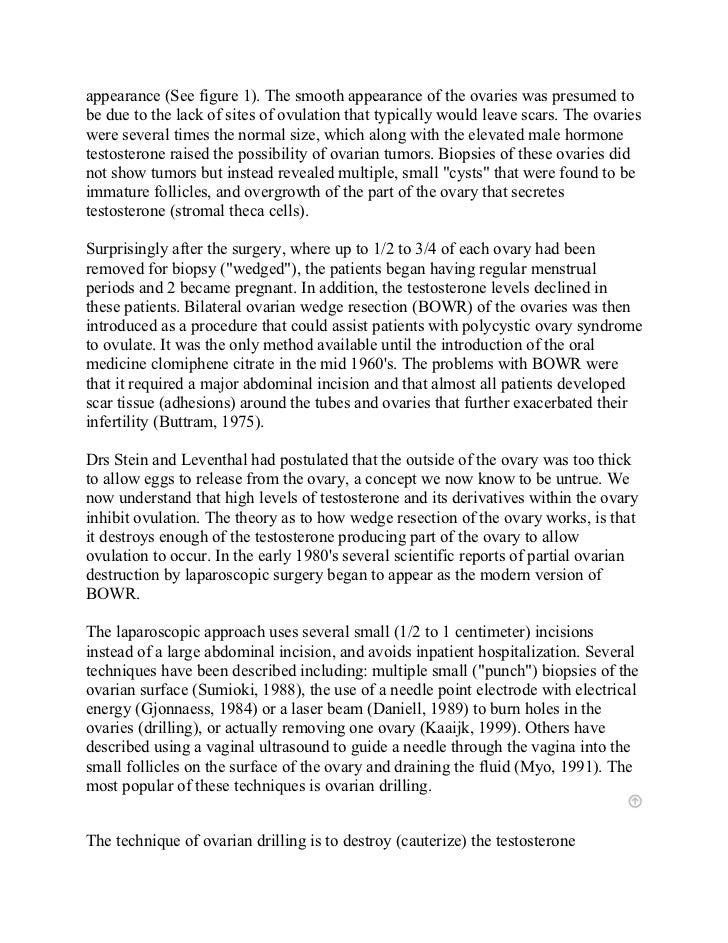 Criminal Justice Essay Topics Ovarian Drilling Fertility Treatment In India At Mumbai And Delhi At Low  Cost Crime As A Social Problem Essays also Anti Abortion Essays Ovarian Drilling Fertility Treatment In India At Mumbai And Delhi A Criminal Justice Essay Topics