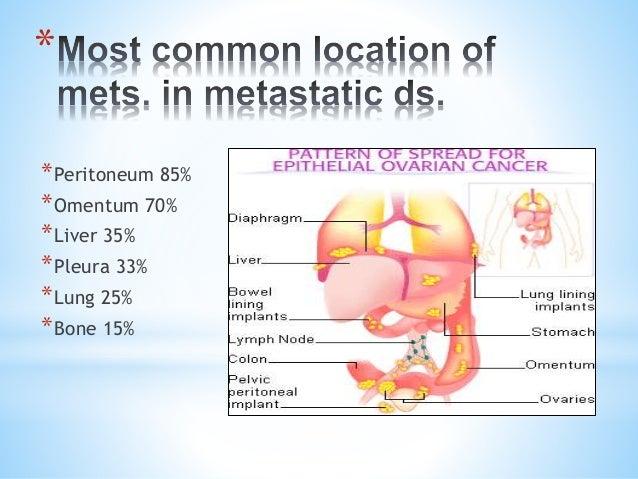 Endometrial Most Cancers Lung Metastasis
