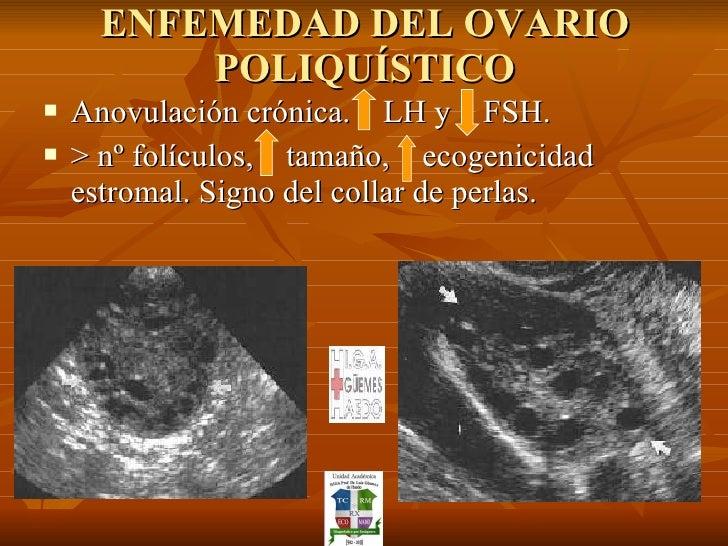 ENFEMEDAD DEL OVARIO POLIQUÍSTICO <ul><li>Anovulación crónica.  LH y  FSH. </li></ul><ul><li>> nº folículos,  tamaño,  eco...