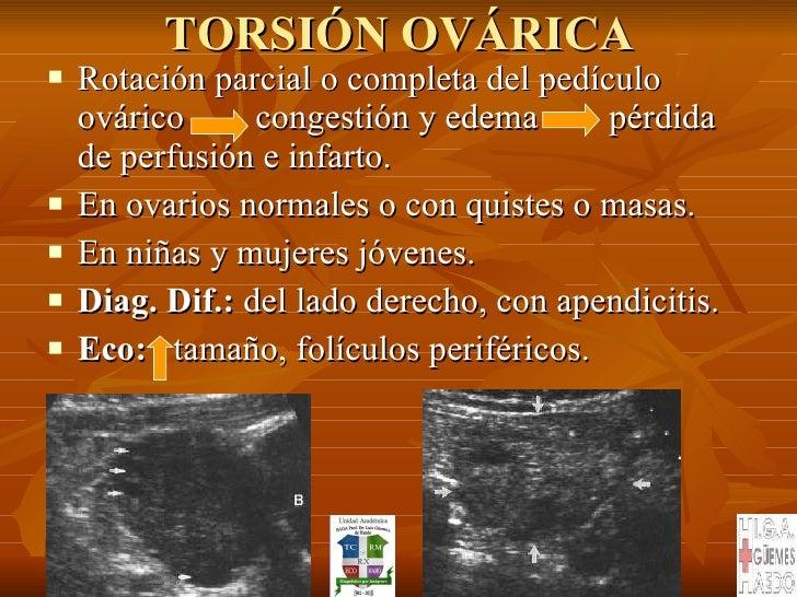 TORSIÓN OVÁRICA <ul><li>Rotación parcial o completa del pedículo ovárico  congestión y edema  pérdida de perfusión e infar...