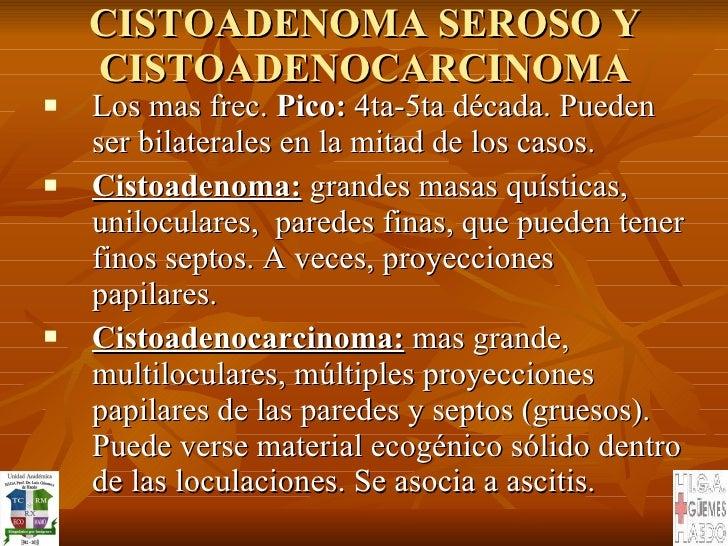 CISTOADENOMA SEROSO Y CISTOADENOCARCINOMA <ul><li>Los mas frec.  Pico:  4ta-5ta década. Pueden ser bilaterales en la mitad...
