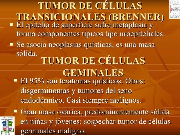 TUMOR DE CÉLULAS TRANSICIONALES (BRENNER) <ul><li>El epitelio de superficie sufre metaplasia y forma componentes típicos t...