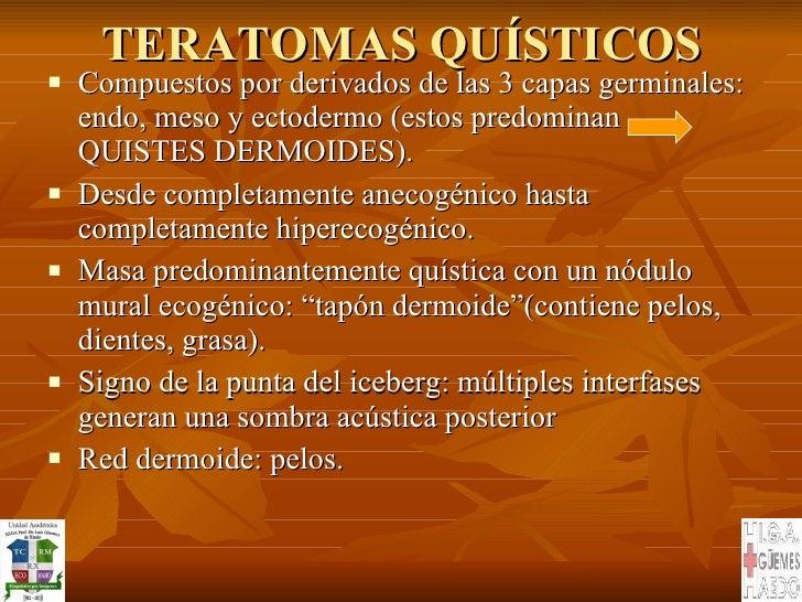 TERATOMAS QUÍSTICOS <ul><li>Compuestos por derivados de las 3 capas germinales: endo, meso y ectodermo (estos predominan  ...
