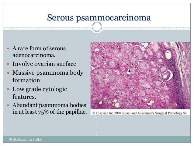 Ovarian Tumors I