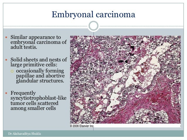 Embryonal Carcinoma Histology