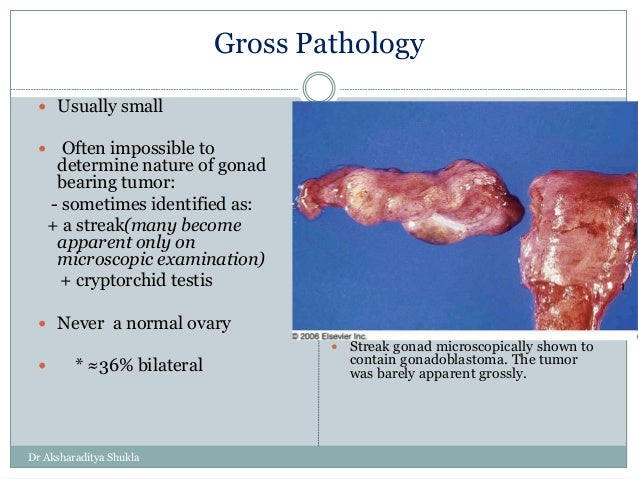 Ovary Slide Share 3