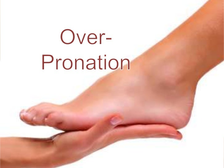 What is over-pronation
