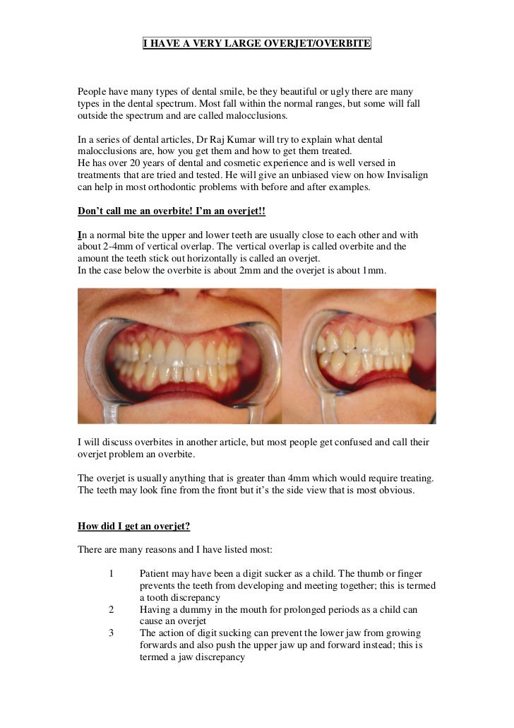 I HAVE A VERY LARGE OVERJET/OVERBITEPeople have many types of dental smile, be they beautiful or ugly there are manytypes ...