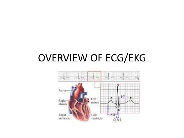 OVERVIEW OF ECG/EKG