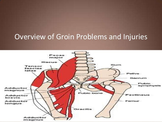 Overview of Groin Problems and Injuries