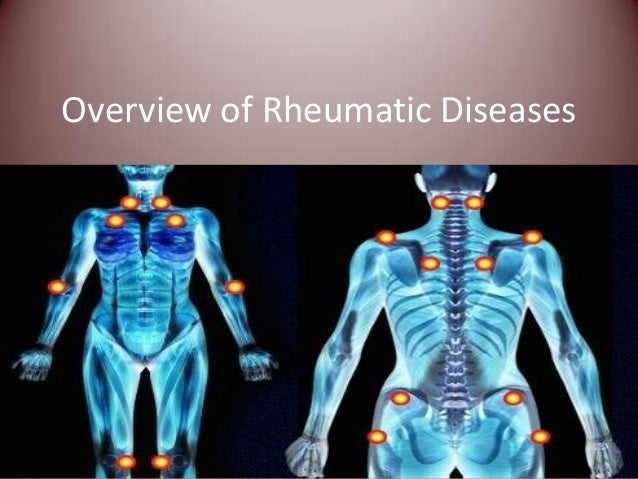 Overview of Rheumatic Diseases