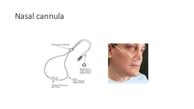 Disadvantage u2013 nasal mucosa drying; 15.  sc 1 st  SlideShare & HIGH AND LOW FLOW OXYGEN DEVICES