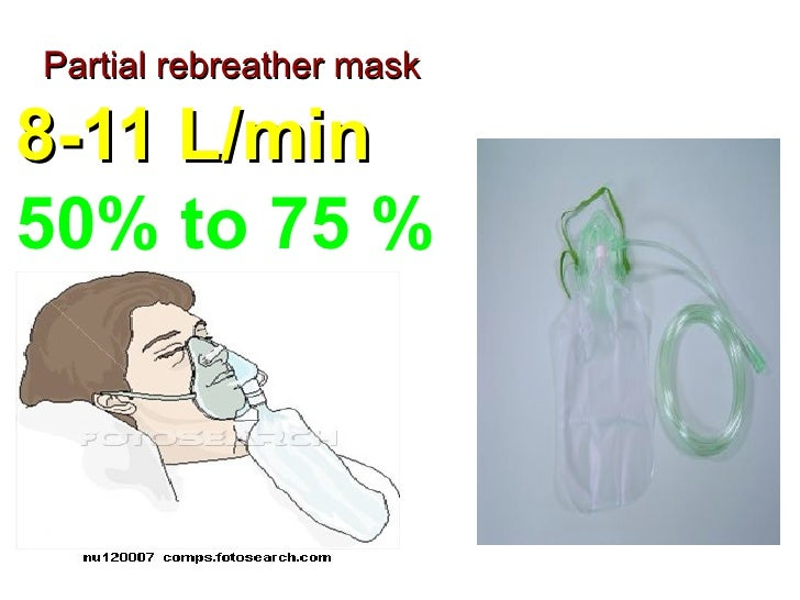 face masks and nasal prongs for postoperative hypoxemia Hypoxemia hypoxia promoting oxygenation  19 nasal prongs  20 face tent simple mask tracheostomy mask   oxygen therapy - facemask, nasal prong uploaded by limyi.