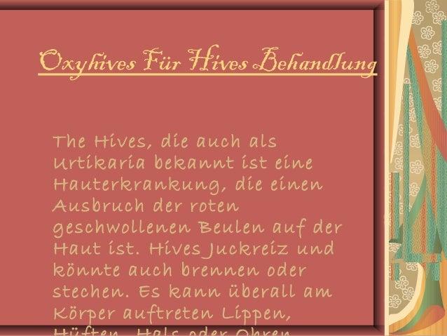 Oxyhives Für Hives Behandlung The Hives, die auch als Urtikaria bekannt ist eine Hauterkrankung, die einen Ausbruch der ro...