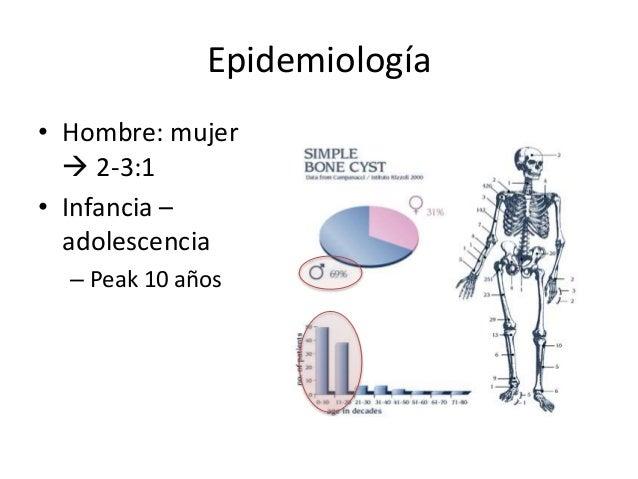 Epidemiología • Hombre: mujer  2-3:1 • Infancia – adolescencia – Peak 10 años