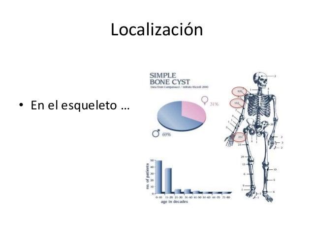 Localización • En el esqueleto …