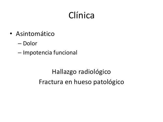 Clínica • Asintomático – Dolor – Impotencia funcional Hallazgo radiológico Fractura en hueso patológico