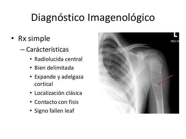 Diagnóstico Imagenológico • Rx simple – Carácterísticas • Radiolucida central • Bien delimitada • Expande y adelgaza corti...