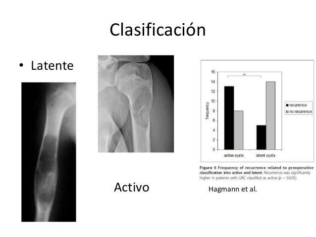 Clasificación • Latente Activo Hagmann et al.