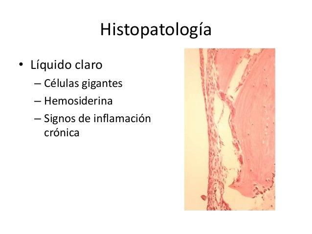 Histopatología • Líquido claro – Células gigantes – Hemosiderina – Signos de inflamación crónica