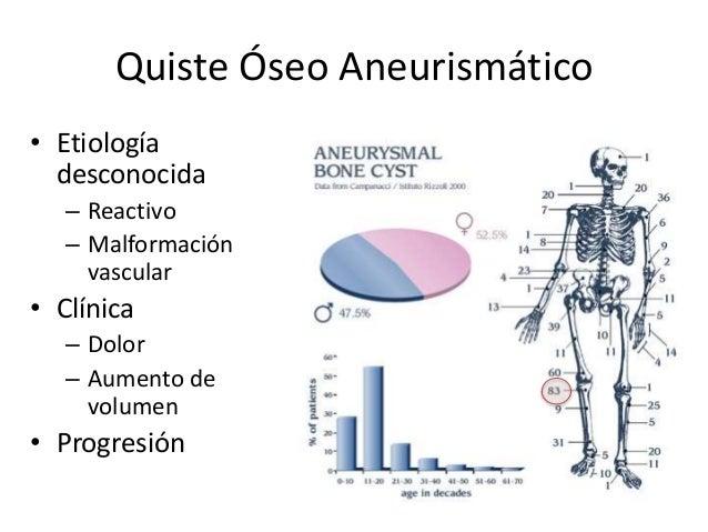Quiste Óseo Aneurismático • Etiología desconocida – Reactivo – Malformación vascular • Clínica – Dolor – Aumento de volume...