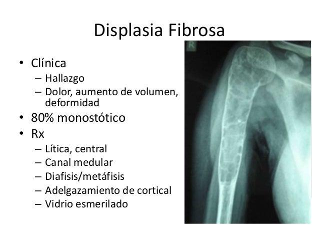 Displasia Fibrosa • Clínica – Hallazgo – Dolor, aumento de volumen, deformidad • 80% monostótico • Rx – Lítica, central – ...