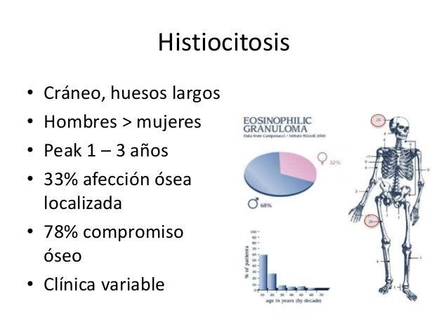 Histiocitosis • Cráneo, huesos largos • Hombres > mujeres • Peak 1 – 3 años • 33% afección ósea localizada • 78% compromis...