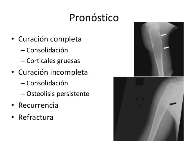 Pronóstico • Curación completa – Consolidación – Corticales gruesas • Curación incompleta – Consolidación – Osteolisis per...
