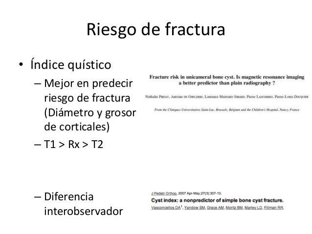 Riesgo de fractura • Índice quístico – Mejor en predecir riesgo de fractura (Diámetro y grosor de corticales) – T1 > Rx > ...