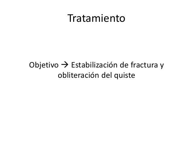 Tratamiento Objetivo  Estabilización de fractura y obliteración del quiste