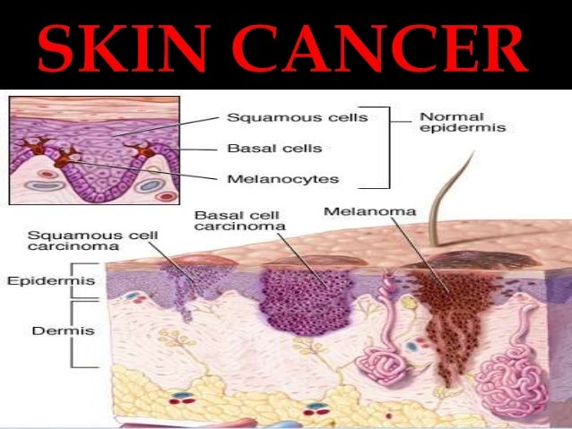 effects of skin cancer The most common types of skin cancer in the united states are basal cell carcinoma and squamous cell carcinomas these are referred to as non- melanoma skin cancers and are generally the result of sun exposure learn more about the effects of uv exposure approximately one in 60 people will develop invasive,.