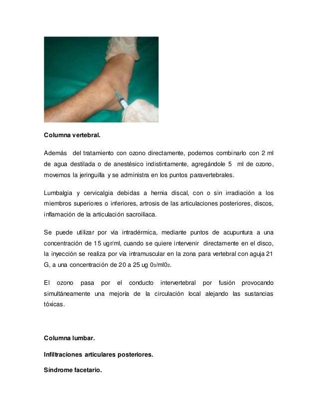 El tratamiento de la columna vertebral en ufe