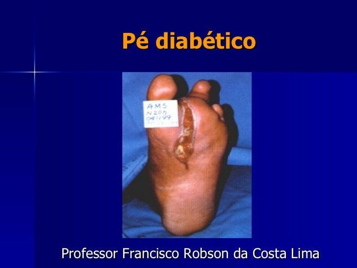 Pé diabético <ul><li>Professor Francisco Robson da Costa Lima </li></ul>