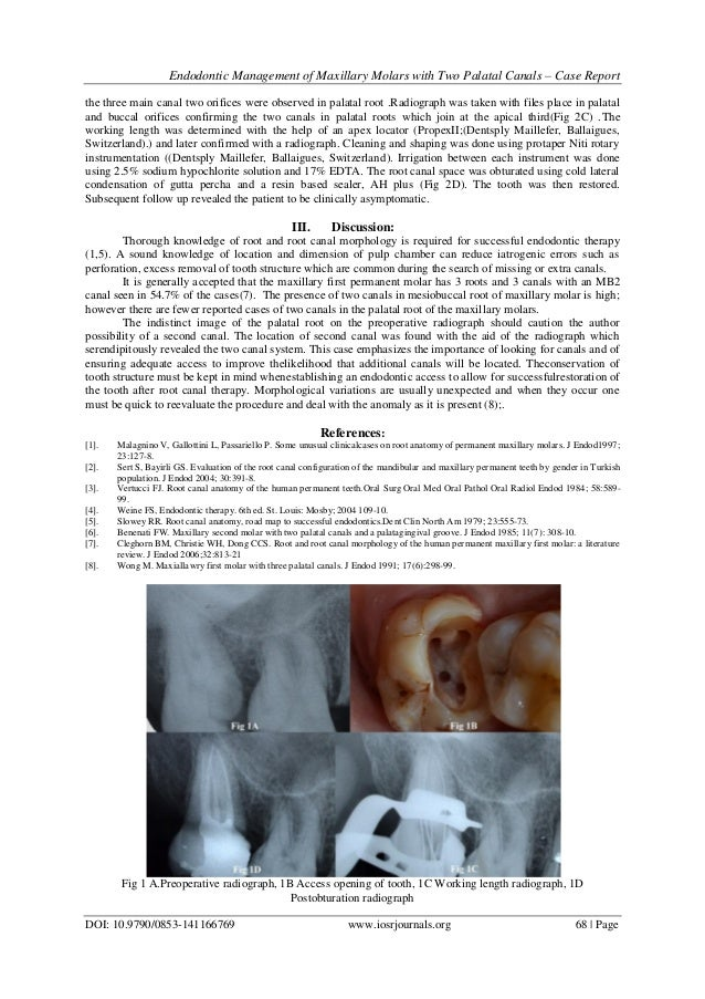 Endodontic Management of Maxillary Molars with Two Palatal Canals – C…