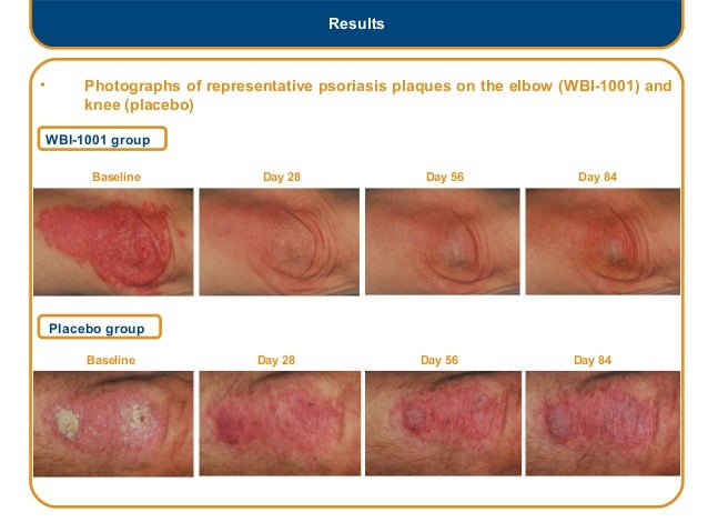 Efficacy and safety of topically applied 1.0% WBI - 1001 ... Guttate Psoriasis