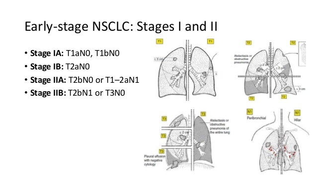 MANAGEMENT OF EARLY STAGE NON SMALL CELL LUNG CARCINOMA