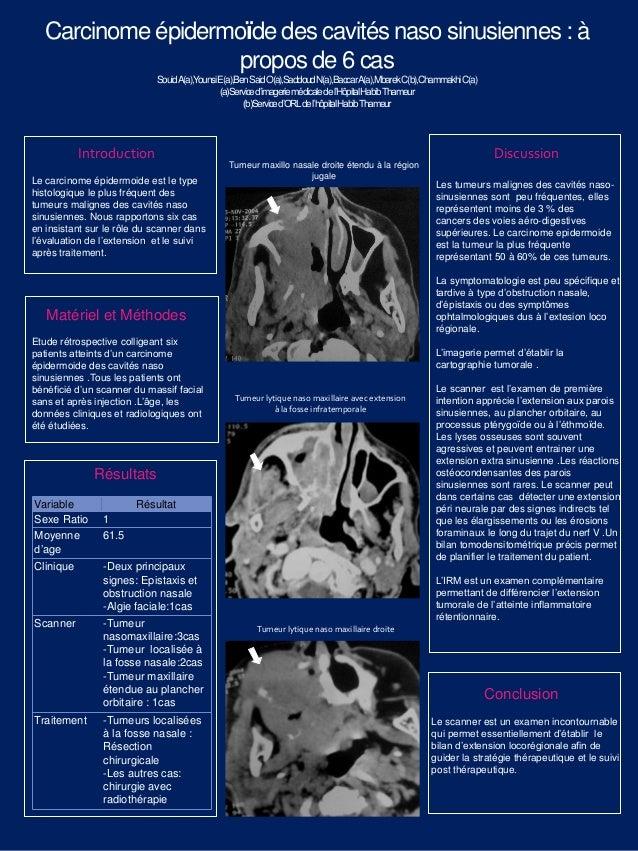 Carcinome épidermoïde des cavités naso sinusiennes : à propos de 6 cas SouidA(a),YounsiE(a),BenSaidO(a),SaddoudN(a),Baccar...