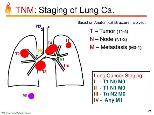 Pathology of Respiratory System Disorders