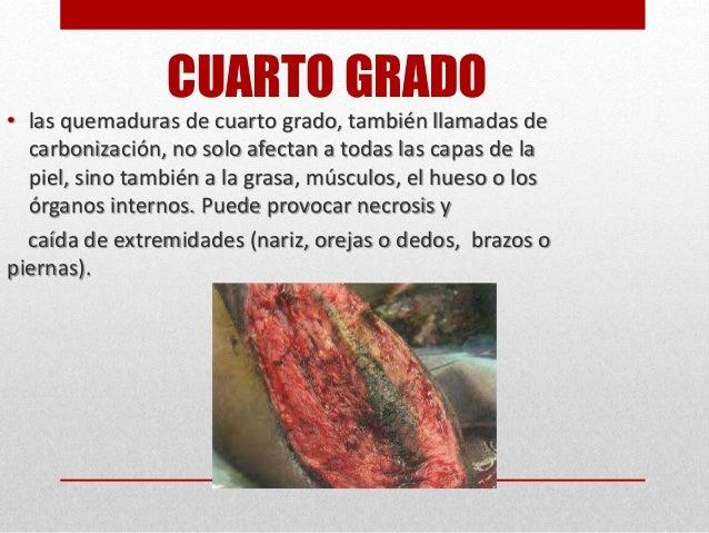 Las Lesiones Of Quemaduras De Cuarto Grado - Ftoro.com