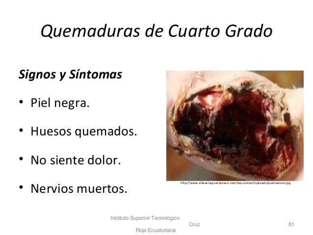 Pab for Quemadura cuarto grado